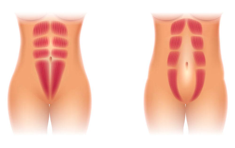 Få en god behandling på Delte mavemuskler